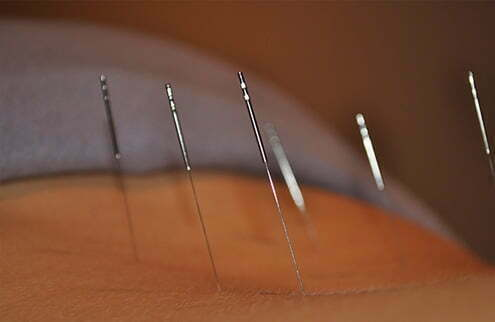 Acupuncture at Sunderland Physiotherapy Clinic
